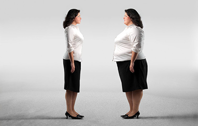 مزایای جراحی کاهش وزن سارا چیذری