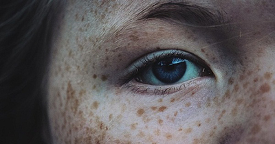 درمان طبیعی لکه های قهوه ای پوست