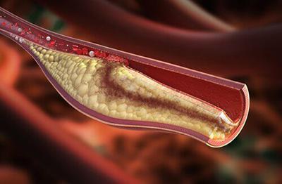 کلسترول بالا و درمان