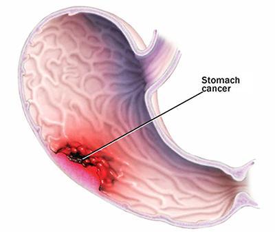 stomach_canser- سرطان معده