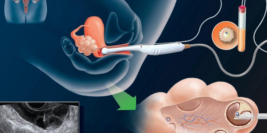 تغذیه مناسب قبل از IVF