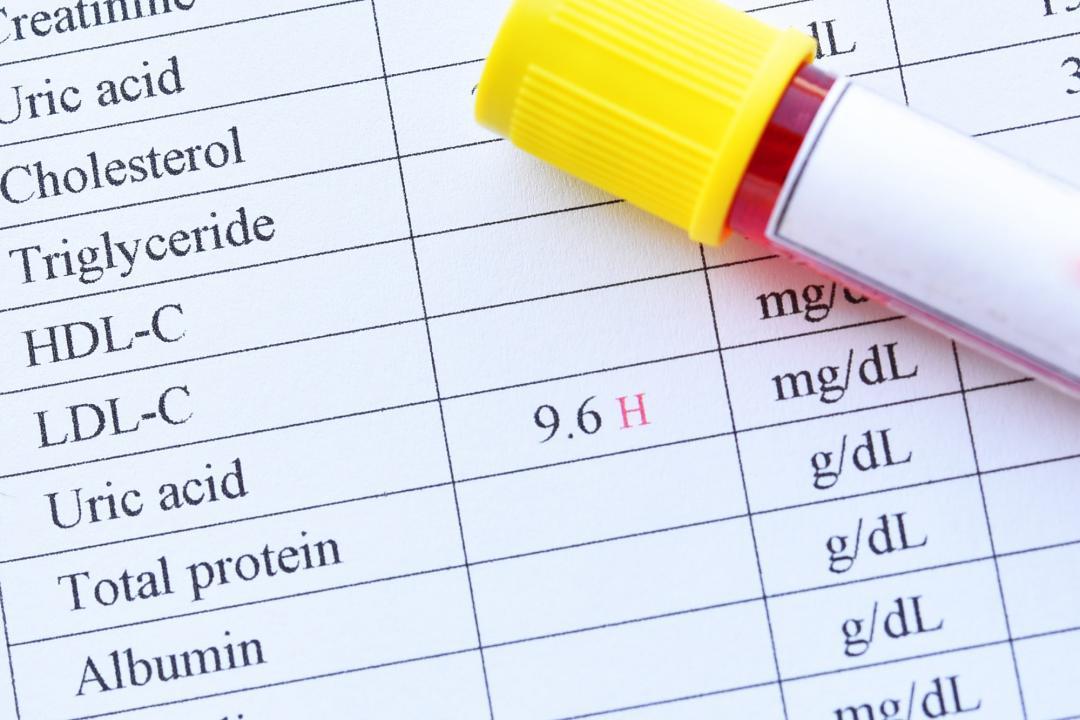 راه های طبیعی برای کاهش اسید اوریک در بدن