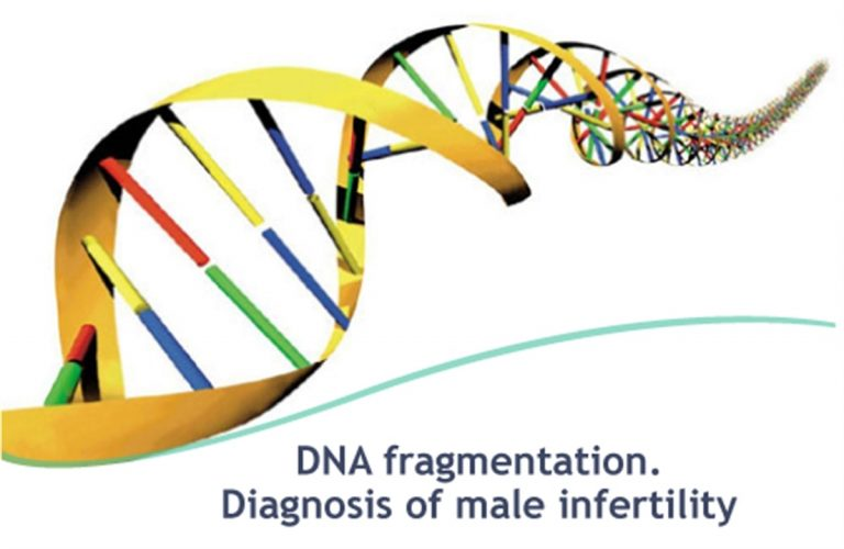 DNA Fragmentation Index ) DFI )