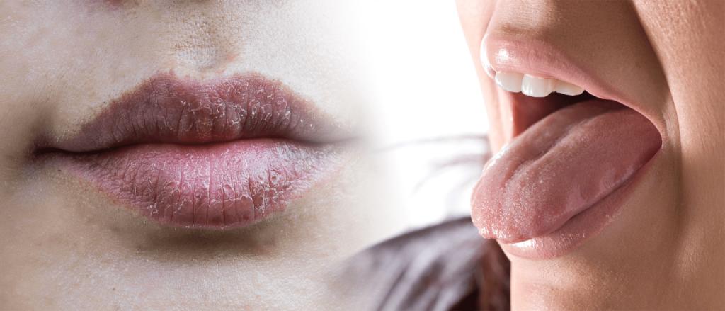 درمان خشکی دهان با تغذیه