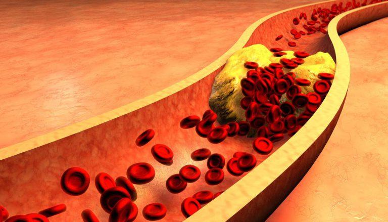 پایین آمدن HDL و خطر گرفتگی عروق