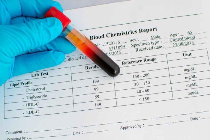 مقدار طبیعی HDL