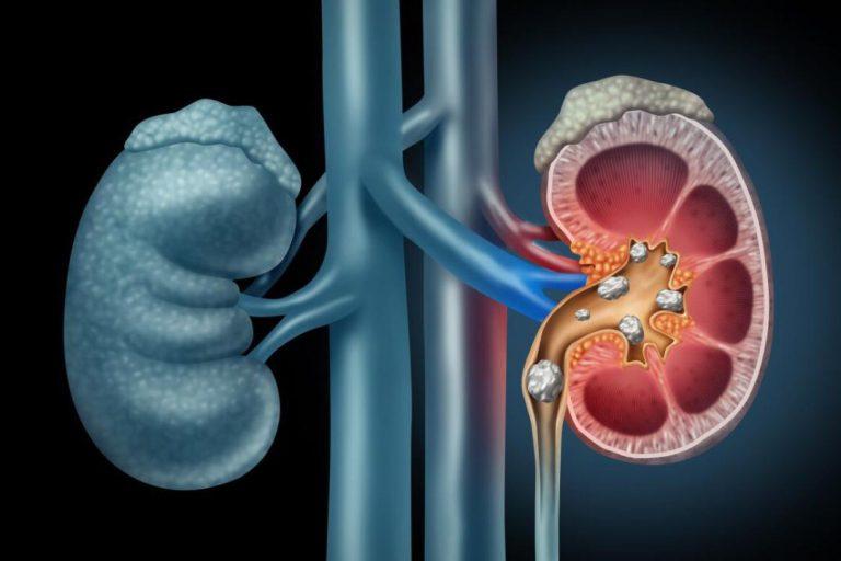 مصرف زیاد ویتامین C ممکن است منجر به ایجاد سنگ کلیه شود