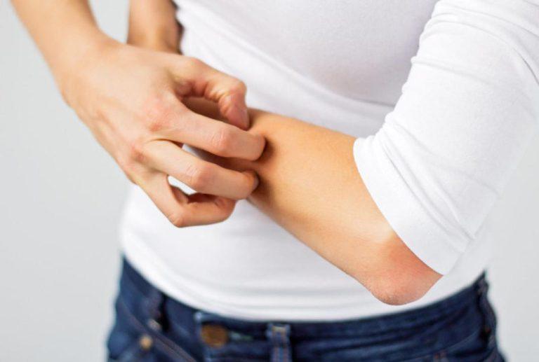 خارش پوست به دلیل التهاب روده