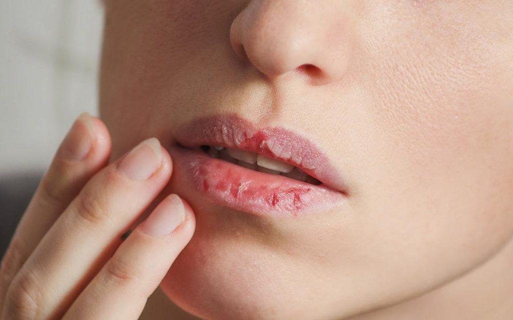 کمبود چه ویتامین هایی باعث ایجاد خشکی و ترک لب می شوند ؟