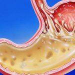 نقش اسید معده در هضم غذا چگونه است ؟